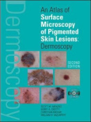 An Atlas of Surface Microscopy of Pigmented Skin Lesions