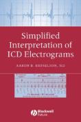 Simplified Interpretation of ICD Electrograms
