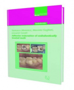 Adhesive Restoration of Endodontically Treated Teeth