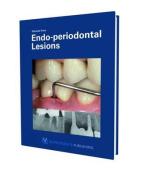 Endo-periodontal Lesion