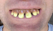 1 Dozen-Goofy-Funny-Ugly-Halloween-Redneck Teeth-ECONOMY BRAND