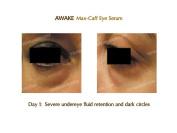 Awake Max-Caff Eye Serum With Eyeseryl® Tetrapeptide 10% & Antioxidants- Quickly Banish Undereye Puffiness, Dark Circles & Wrinkles.