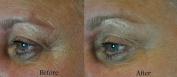 Instant Facelift Anti Ageing Serum 15ml