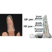 Open Air Stax Finger Splint #2