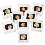 Diseases of the Ear Projection Slides, Diagnostic & Procedural Ear Trainer