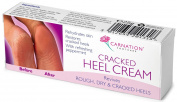 Carnation Cracked Heel Cream