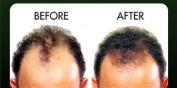 VELFORM Hair Grow Natural tonic Natural Herb Hair Grow Tonic Stimulates Hair Growth Stop Hair Loss Hair Fall 200 ML