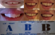 ORTHODONTIC GAP TEETH BANDS - 3 PACKS 3 GREAT SIZES 1/8 HEAVY 3/16 HEAVY AND 3/16 X HEAVY