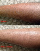 SR Lotion, Excellent Ichthyosis Treatment, Outstanding Results in 2 Weeks