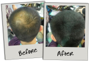 3D Hair Loss Fibres for Thinning Hair Black 35g