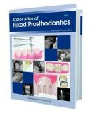 Color Atlas of Fixed Prosthodontics