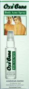 Body Acne Spray Oxe Cure 50 Ml 1 Psc.