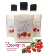 Miracle RoseHip and Aloe Lotion ~ Superstar Creme