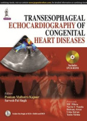 Transesophageal Echocardiography of Congenital Heart Diseases