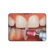 Shofu Dental Corp L522 Super-Snap Discs Finishing Mini Dk Viol 50/Bx