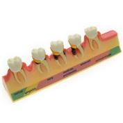 Dental Power Dental Periodontal Disease Assort Tooth Typodont Model