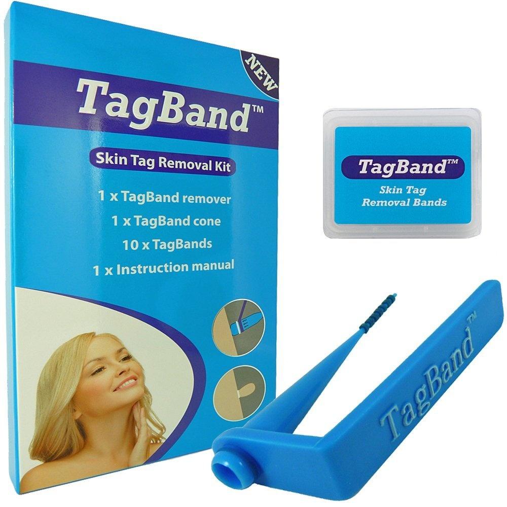 skin tag removal singapore