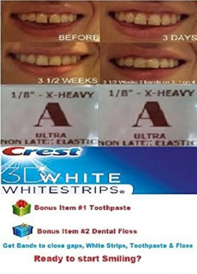 ORTHODONTIC ELASTIC GAP TEETH BANDS SIZE 1/8 EXTRA HEAVY * MAX PULL * - 2 PACKS 200 BANDS - WITH WHITE STRIPS TOOTHPASTE & DENTAL FLOSS. INTERNATIONAL SHIP