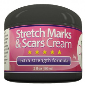 Stretch Mark and Scar Removal Cream by DIVA Fit & Sexy - Made with Natural and Organic Herbal Extracts - Safe to Use During and After Pregnancy or Due to Acne Scars - Extra Strenght Formula That Works! -  .  d!