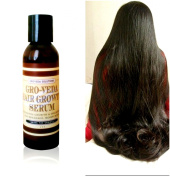 Groveda Fast Hair Growth Product for Women and Men. 100% Natural 120ml Hair Oil for Hair Growth. Powerfully Infused Amla, Coconut Oil, Peppermint Oil, Rosemary Oil, Biotin for Hair Growth. Helps with Hair Loss, Alopecia, Thinning Hair.
