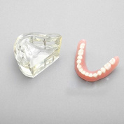 Removable Overdenture Inferior with 4 Implants Demo Teeth Study Model First Dental