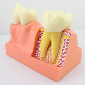 Writ Large Tooth Tooth Anatomy Teaching Model of Dental Model Decomposition Model 4 Times