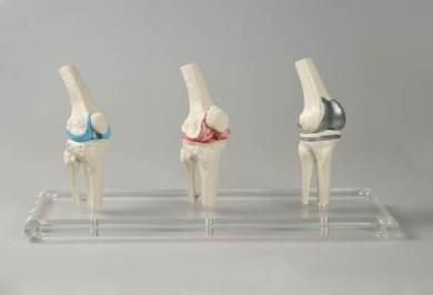 anatomical model, Knee Implant, 3 Models, 3 Stages