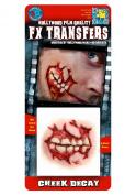 Tinsley Transfers Cheek Decay