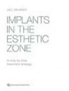 Implants in the Esthetic Zone