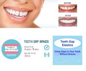 IVORIE Dental Teeth Gap Orthodontic Bands Clear Elastic 100/Pk