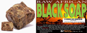 #1 Best Quality African Black Soap - 0.5kg. Raw Organic Soap for Acne, Dry Skin, Rashes, Burns, Scar Removal, Face & Body Wash,
