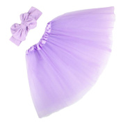 Alonea Baby Kids Head Accessories Hairband Baby Hairband +Child Party Skirt Dress