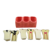 Tinsay New 4 Times Dental Teeth Model Patient Education Model Caries Treatment Model