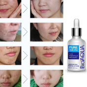Baomabao Face Skin Care Removal Solution Acne Spots Scar Marks Blemish Treatment