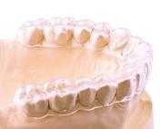 P & J Health Custom Mouth Guard for Teeth Grinding & Bruxism