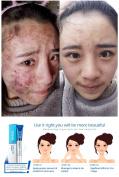 ISILANDON Acne Cleaning Cream Blackhead Skin Care Remove Repair Comedone Pimple Acne Quickly Face Acne Cream Remover Anti Acne