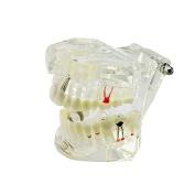 Inmedy Transparent Dental Implant Disease Teeth Model Dentist Standard Pathological Removable Tooth Teaching Oral Hygiene Model