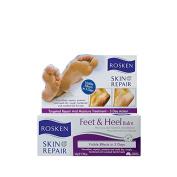 ROSKEN Skin Repair ROSKEN Feet & Heel Balm 50g