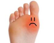 Foot Cream Anti Corn & Callus Therapeutic with Lemon & Peppermint Oil 200 ml