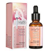 Retinol Serum with 2.5% Retinol Luckyfine Retinol Face Serum, Best Treatment for Acne and Acne Scars, Pigmentation, Fine Lines, Wrinkles and Dark Circles