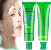 Skin Acne Treatment Cream,Fheaven 30g Face Skin Care Acne Cream Oil Control Acne Products Face Cream Beauty Product
