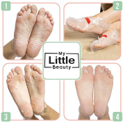 MY LITTLE BEAUTY Foot Peel Mask - Dead Skin Remover for Touch Smooth Feet
